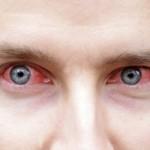 """דלקות עיניים ד""""ר ניר ארדינסט. שיבוץ תמונה ברישיון ד""""ר ניר ארדינסט"""